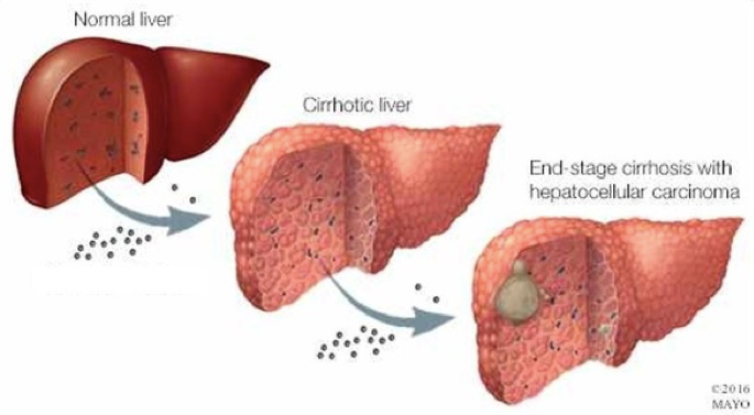 The progression from a normal liver to a cirrhotic liver with liver cancer
